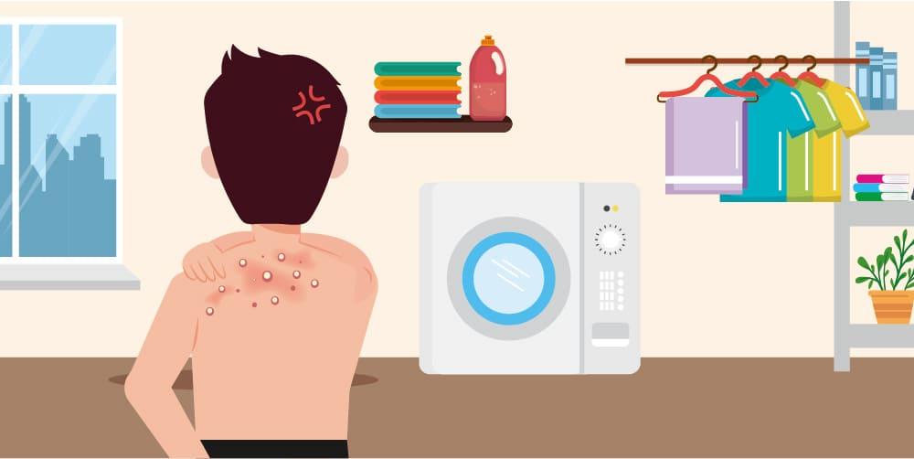 背部痘痘,需定期清洗洗衣機